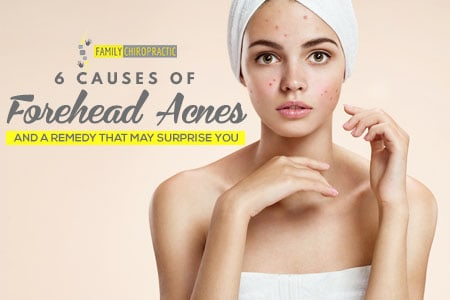 6 Causes Of Forehead Acnes And A Remedy That May Surprise You
