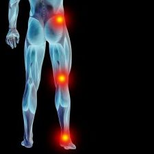 Pain that extends from your lower spine to your buttock and down the back of your leg